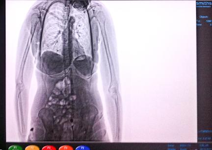 Women nude in x rays